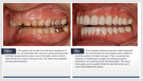 Before and after images from Palani Center for Dental Implants in Rancho Palos Verdes, CA