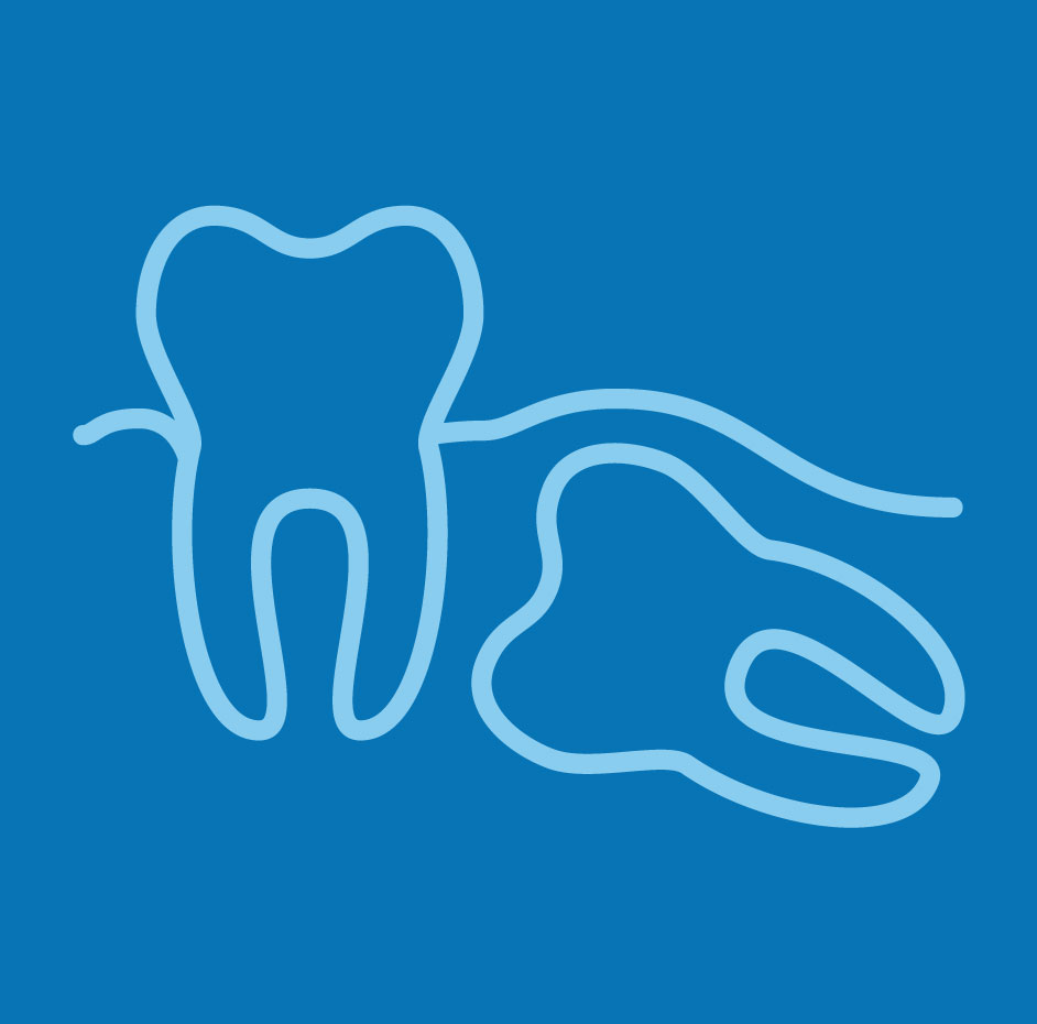 Blue impacted wisdom tooth image from Palani Center for Dental Implants in Rancho Palos Verdes, CA