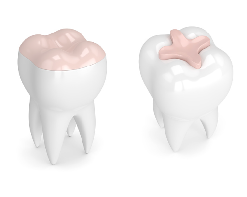 Does Your Tooth Require an Inlay?