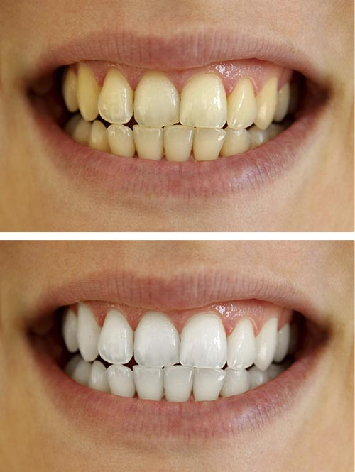 A man's teeth before and after a teeth whitening.